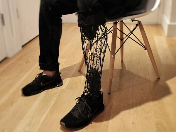 3d print Prosthetic Limbs